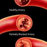 Anatomy of Atherosclerosis in artery due to cholesterol plaque