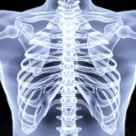 Rib cage pain: Six possible causes